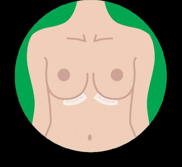 ärr bröstförstoring behandling